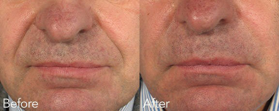 filler-before-and-after-2