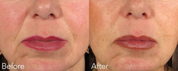 filler-before-and-after-3